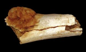 Cancer on a Paleo-diet-GeologyPage