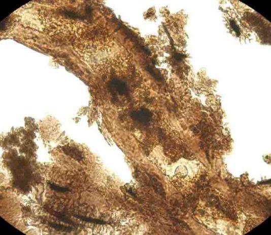 Dinosaur blood vessel with adjacent bone matrix that still contains bone cells.
